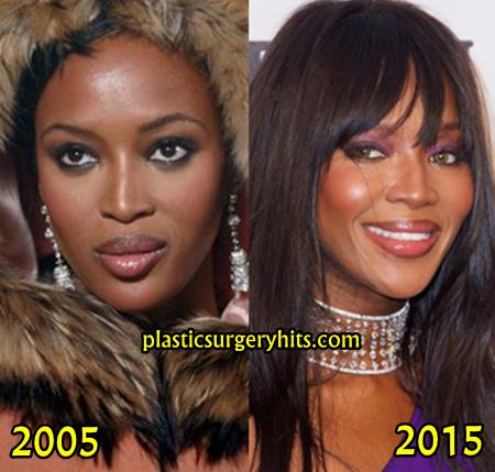 Naomi Campbell Plastic Surgery fact or Rumor