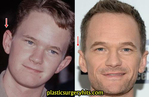 Neil Patrick Harris Ear Surgery