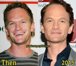 Neil Patrick Harris Plastic Surgery Before and After