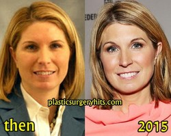 Nicolle Wallace Plastic Surgery Fact or Rumor