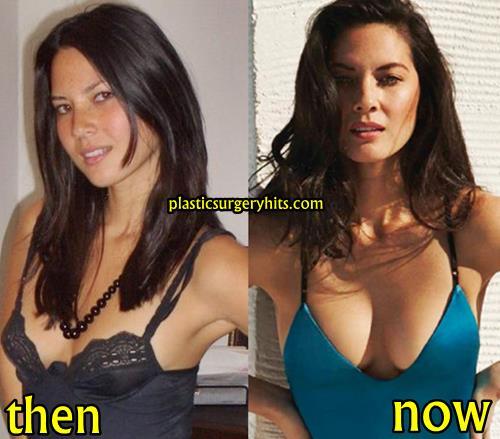 Olivia Munn Plastic Surgery Fact or Rumor