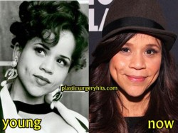 Rosie Perez Facelift and Botox