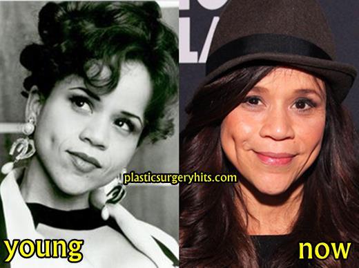 Rosie Perez Facelift and Botox