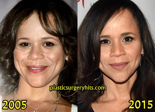 Rosie Perez Plastic Surgery Before and After