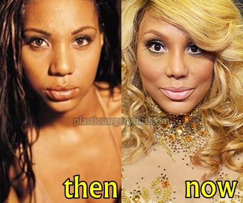 Tamar Braxton plastic Surgery Nose Job