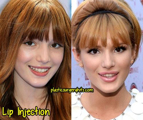 Bella Thorne Lip Injection