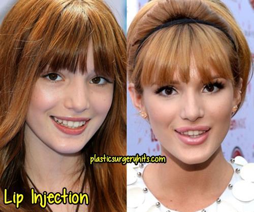 Bella Thorne Lip Injection