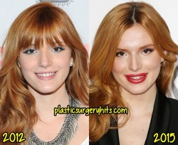 Bella Thorne Plastic Surgery Nos Job