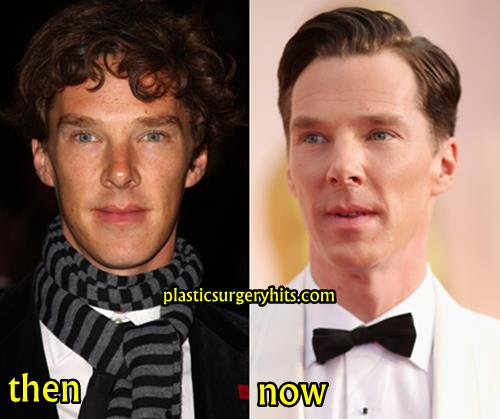 Benedict Cumberbatch Plastic Surgery Fact or Rumor