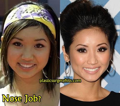 Brenda Song Plastic Surgery Through Nose Job