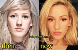 Ellie Goulding Plastic Surgery Fact or Rumor