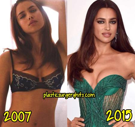 Irina Shayk Breast Implants Rumor