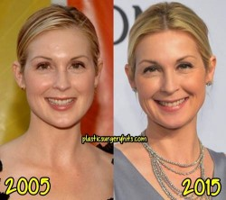 Kelly Rutherford Plastic Surgery Before and After