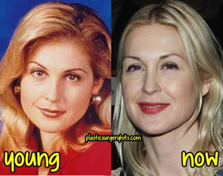 Kelly Rutherford Plastic Surgery