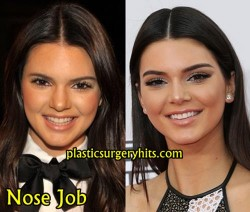 Kendall Jenner Nose Job