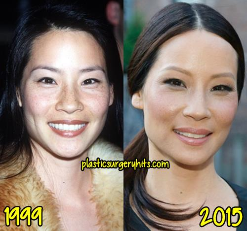 Lucy Liu Plastic Surgery Rumor