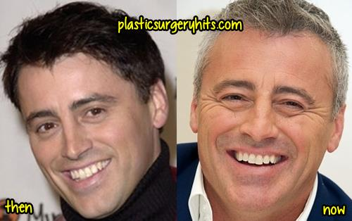 Matt LeBlanc Plastic Surgery Rumor