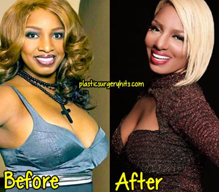 NeNe Leakes Plastic Surgery before and After