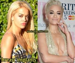 Rita Ora Breast Implants
