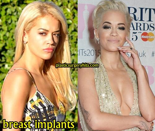 Rita Ora Breast Implants