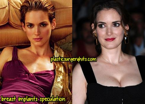 Wynona Ryder Plastic Surgery Breast Implants
