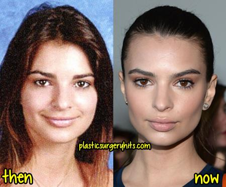 Emily Ratajkowski Plastic Surgery Fact or Rumor