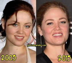 Erika Christensen Plastic Surgery Fact or Rumor