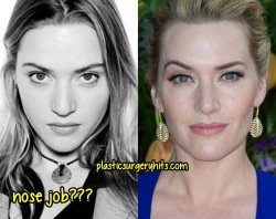 Kate Winslet Nose Job rumor
