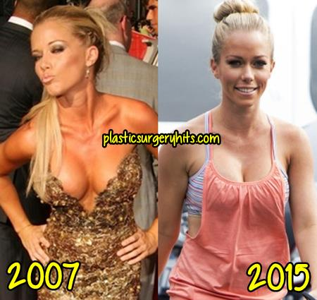 Kendra Wilkinson Plastic Surgery Before and After