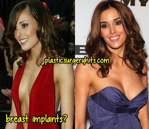 Rebecca Judd Breast Implants