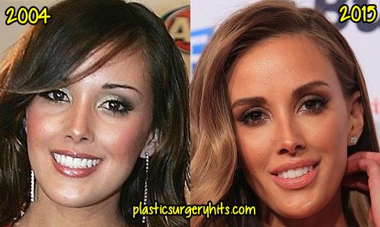 Rebecca Judd Plastic Surgery Fact or Rumor