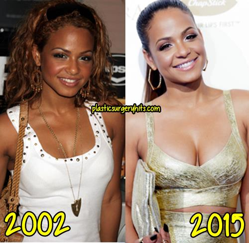 Christina Millian Plastic Surgery Before and After