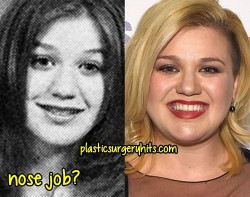 Kelly Clarkson Nose job