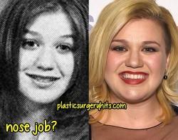 Kelly Clarkson Nose job