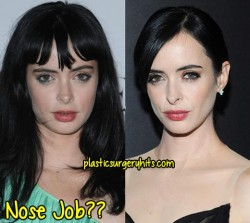 Krysten Ritter Plastic Surgery Fact or Rumor