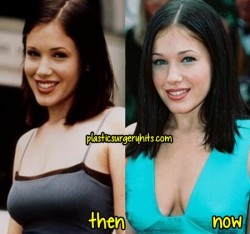 Marla Sokoloff Plastic Surgery Fact or Rumor