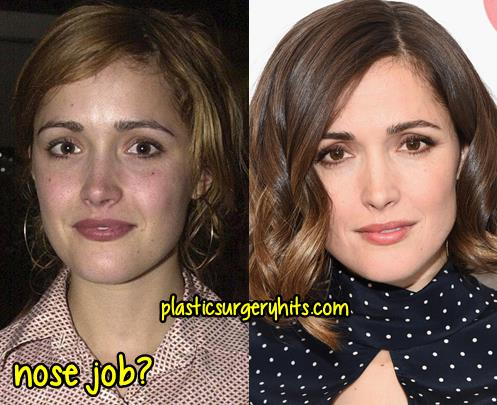 Rose Byrne Nose Job