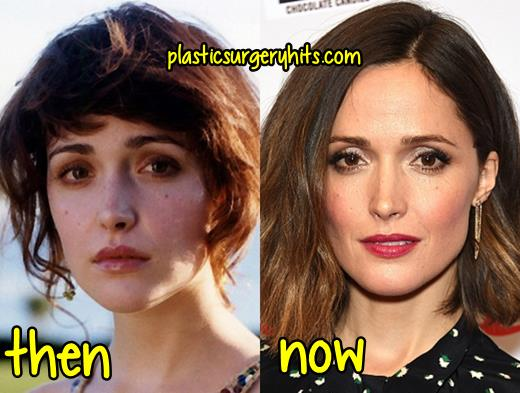 Rose Byrne Plastic Surgery Fact or Rumor