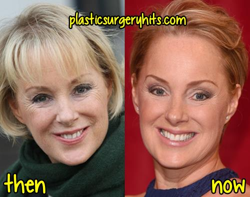 Sally Dynevor Plastic Surgery Before and After