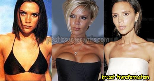 Victoria Beckham Breast Implants and Reduction
