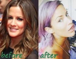 Caroline Flack Plastic Surgery fact or Rumor