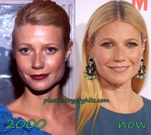 Gwyneth Paltrow Plastic Surgery Botox