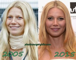 Gwyneth Paltrow Plastic Surgery Fact or Rumor