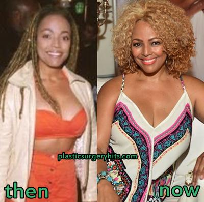 Kim Fields Plastic Surgery