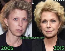 Mary Mapes Plastic Surgery Fact or Rumor