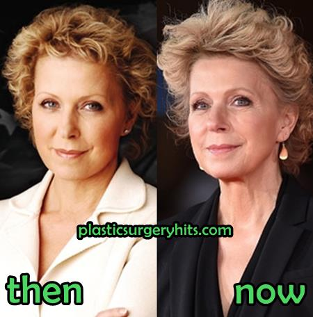 Mary Mapes Plastic Surgery