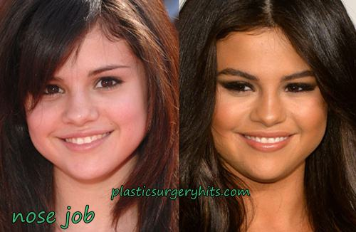 Selena Gomez Nose Job