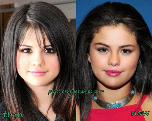 Selena Gomez Plastic Surgery Before and after