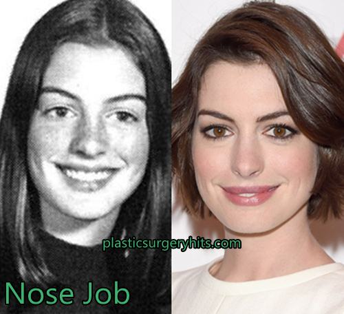 Anne Hathaway Plastic Surgery Through Nose Job