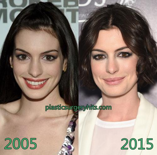 Anne Hathaway plastic surgery fact or rumor